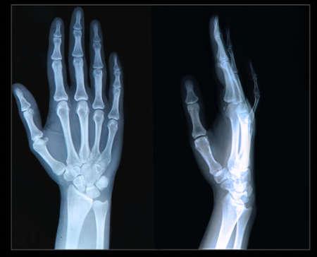 luxacion: Radiografía de la Mano dedos humanos