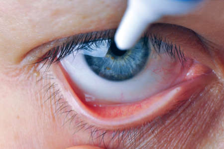 Implementation drug in conjunctival sac. Instill eye ointment.