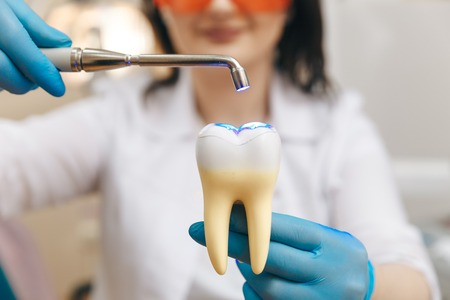 Female dentist in the mask showing how to make tooth filing on the tooth model. Stock Photo