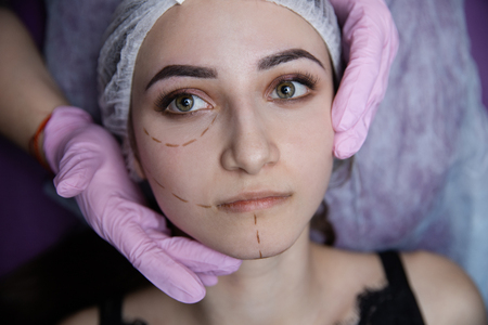 Preparation for plastic surgery. Young model in the clinic with perforation lines on her face.