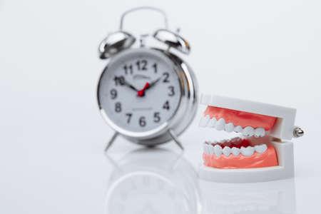 Jaw model and alarm clock. Teeth treatment concept Banque d'images