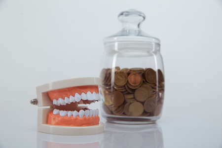 Model of jaw and glass bank with coins close-up. Expensive dentists services concept