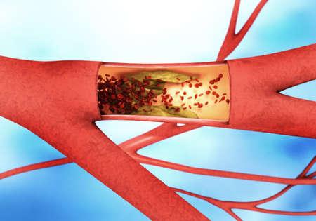 vasos sanguineos: Secci�n representativa de una precipitantes o el estrechamiento de los vasos sangu�neos llamados artesclerosis. Foto de archivo