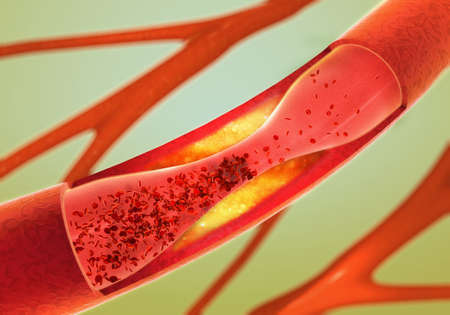 cholesterol: Precipitate and narrowing of the blood vessels - arteriosclerosis
