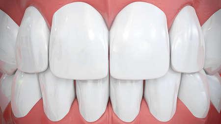 implants: Frontal view on sparkling white anterior teeth Stock Photo