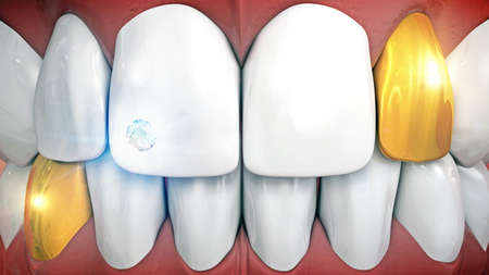 gemstone: Anterior teeth with gemstone implant and eyeteeth in gold, tooth jewelery with gemstone and gold crown