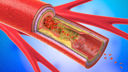 3d illustration of a precipitated and narrowing blood vessels or arteriosclerosis Stock Illustration - 87761647