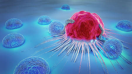3d illustration of a cancer cell and lymphocytes Archivio Fotografico - 97061892