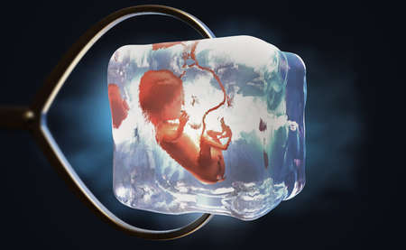 3d illustration of a cryopreserved fetus frozen into ice cube held by metal pliers