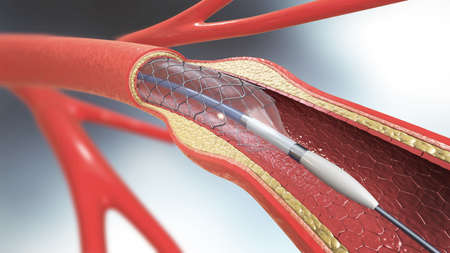 3d illustration of stent implantation for supporting blood circulation into blood vessels Foto de archivo