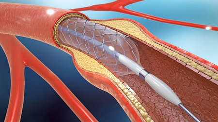 3d illustration of stent implantation for supporting blood circulation into blood vessels Imagens
