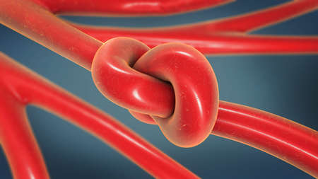 3d illustration of a knot in an artery being constricted and narrowed called arteriosclerosis Stock Photo