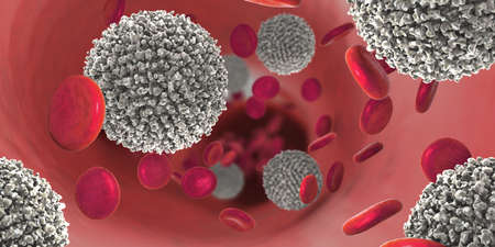 3d illustration of the strong increase of non-functional white blood cells called leukemia cells leading to blood cancer disease