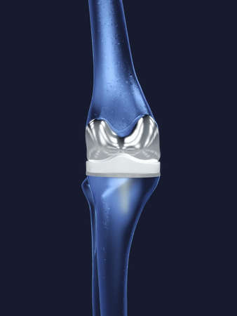 Artificial knee joint in blue shades - 3D Illustration