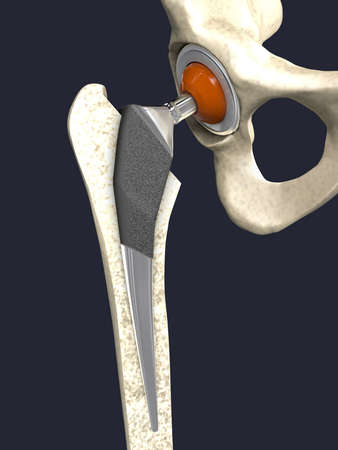Function of a hip joint implant or hip prosthesis in frontal view - 3d illustration