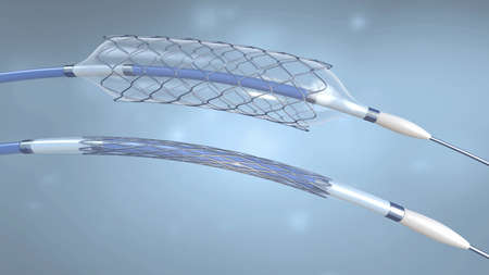 Stent and catheter for implantation into blood vessels with an empty and filled balloon - 3d illustration
