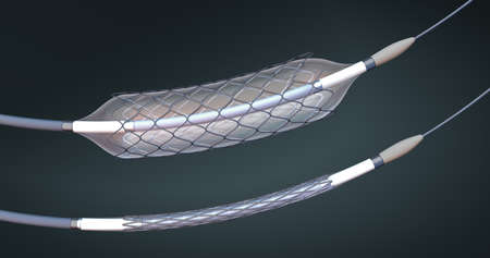 Stent and catheter for implantation into blood vessels with an empty and filled balloon - 3d illustration Stok Fotoğraf - 121544187