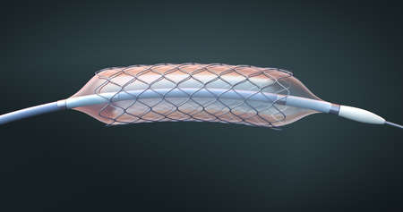 Stent and catheter for implantation and supporting blood circulation into blood vessels - 3d illustration Stock Photo