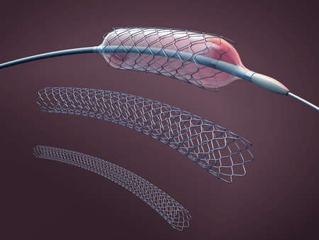 Three metal stents for implantation and supporting blood circulation into blood vessels and catheter - 3d illustration Standard-Bild - 121544189