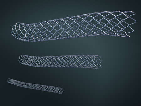 Three metal stents for implantation and supporting blood circulation into blood vessels - 3d illustration