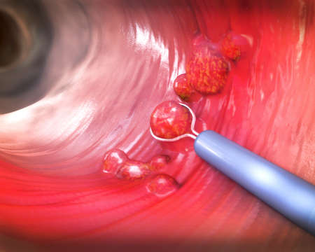 Removal of a colonic polyp with a electrical wire loop during a colonoscopy - 3d illustration