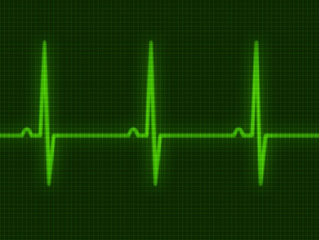 electrocardiogram: Abstract heart beats cardiogram for you design