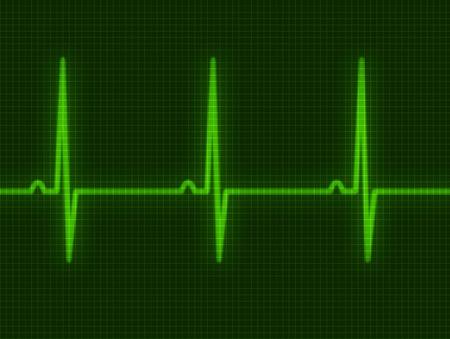 elettrocardiogramma: Astratto cuore batte cardiogramma per voi design