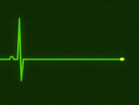 pulso: Abstracta coraz�n late cardiogram para dise�o