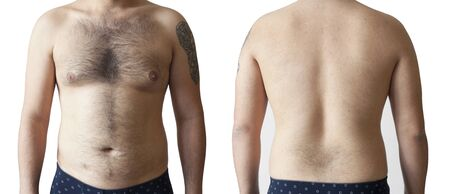 Hairy body of a man, stomach and chest, excessive hairiness, depilation, moles, overweight navel.
