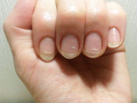 Spring avitaminosis of nails