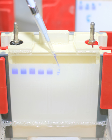 Polyacrylamide gel electrophoresis for separate biological macromolecules test mobility is a function of the length