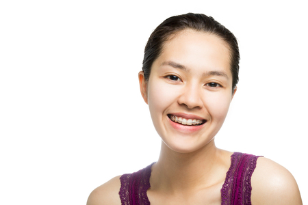 fix jaw: Beautiful smiling girl with retainer for teeth isolated on white background.
