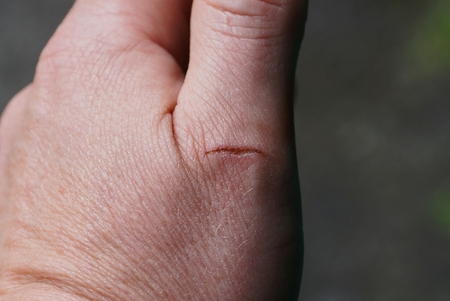 a cut on the finger of a man