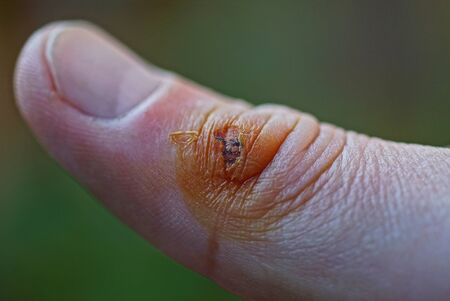 one big wound on the skin of the finger Stok Fotoğraf - 131339774