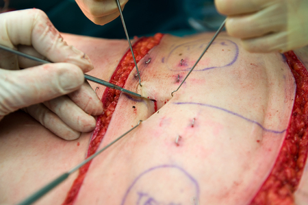 incision: A surgeon making an incision near the belly button during an operation