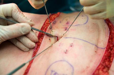 ombligo: Un cirujano haciendo una incisión cerca del ombligo durante una operación