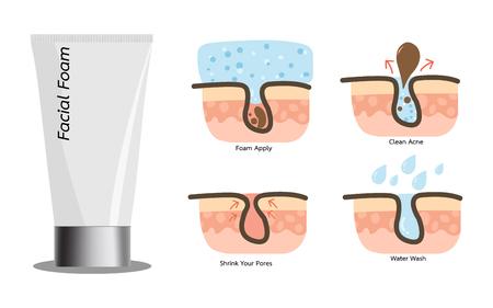 Acne gezichtsschuim wassen met acne schoon proces. Stock Illustratie
