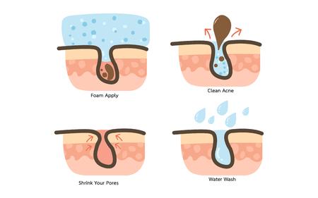 Acne Clean Process und Akne Gesichtsschaum Vektorgrafik