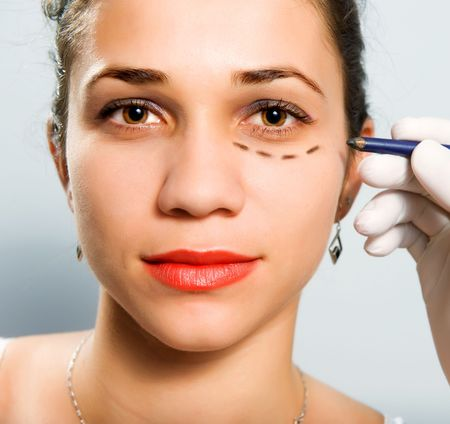 Drawing lines on a Caucasian girls face as marks for facial plastic surgery Stock Photo