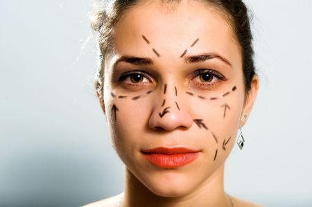 Drawn lines on a Caucasian womans face as marks for facial plastic surgery