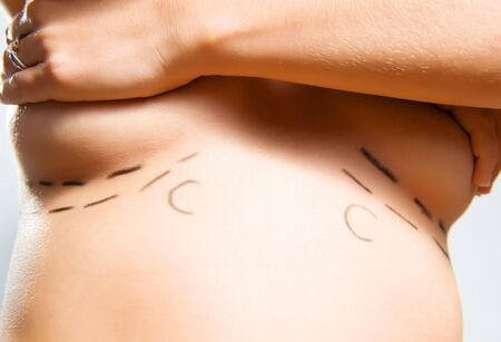 Closeup photo of a Caucasian womans breasts marked with lines for breast augmentation cosmetic surgery