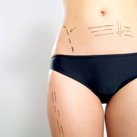 correction lines: Closeup photo of an attractive Caucasian womans abdomen and legs marked with lines for abdominal cellulite correction cosmetic surgery.