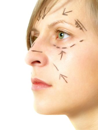 Closeup portrait of an attractive Caucasian girl whose face is marked with lines and arrows for facial cosmetic surgery. Isolated on white.   Stock Photo