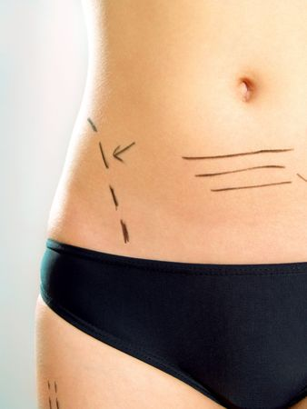 Closeup photo of an attractive Caucasian womans abdomen and leg marked with lines for abdominal cellulite correction cosmetic surgery.