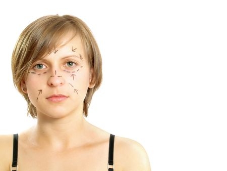Closeup portrait of a cute Caucasian girl whose face is marked with lines and arrows for facial cosmetic surgery. Isolated on white.