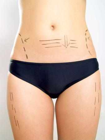 Closeup photo of an attractive Caucasian womans abdomen and legs marked with lines for abdominal cellulite correction cosmetic surgery.