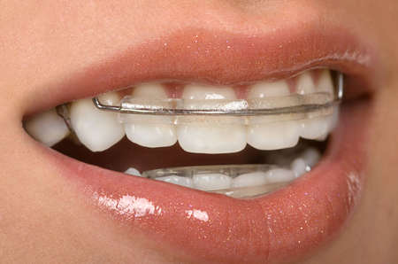 Girl with dental braces ( retainer) Reklamní fotografie