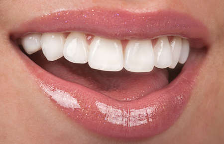 makeover: Healthy teeth Stock Photo
