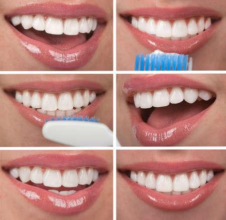 健康な歯歯科コラージュ 写真素材