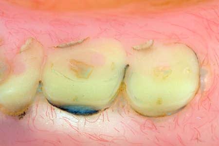 dientes con caries: Una visi�n muy estrecha de los dientes desgastados en un viejo par de pr�tesis dentales. Foto de archivo